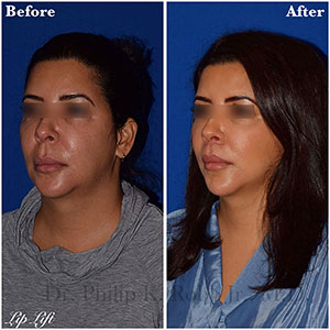 lip lift - angle view - patient 1